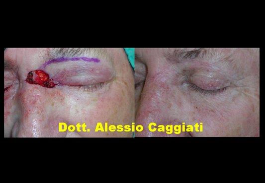 Palpebre oncoplasticafacciale dott alessio caggiati for Interno del naso